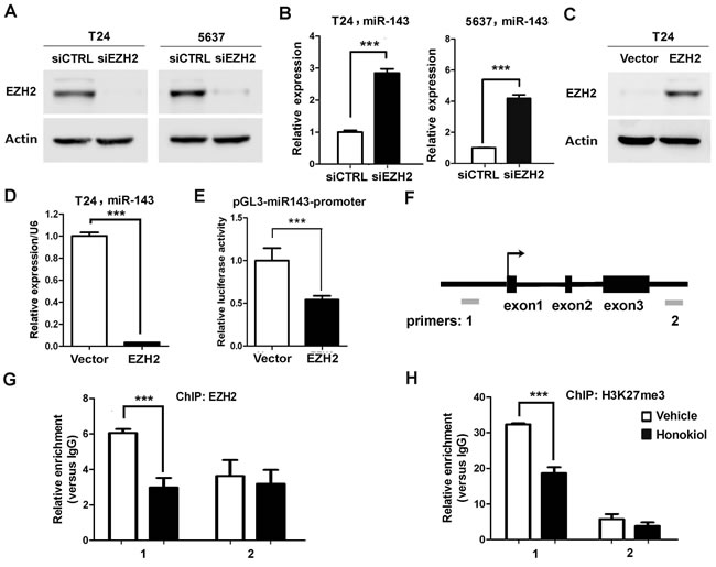 EZH2 directly regulated miR-143 expression in UBC cells.