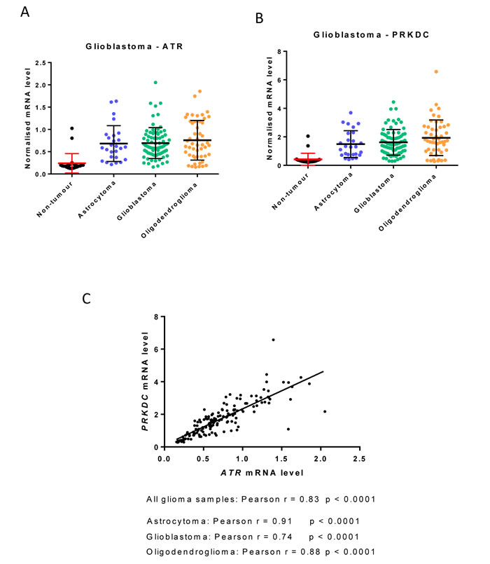 ATR and PRKDC (DNA-PKcs) mRNA expression in glioblastoma subtypes.