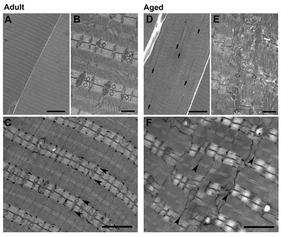 Analyses of adult and aged EDL muscle by light and electron microscopy (EM).