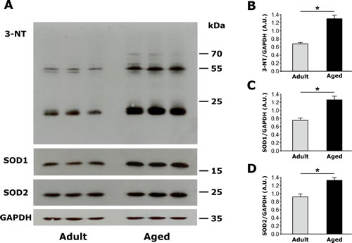 Assessment of oxidative stress, measured as the amount of total 3-Nitrotyrosine (3-NT), copper/zinc superoxide dismutase (SOD1) and manganese superoxide dismutase (SOD2) expression in EDL muscles from adult and aged mice.