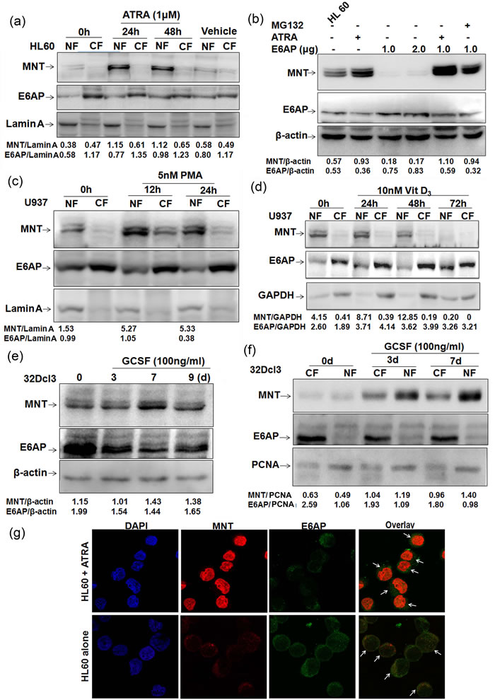 MNT expression is upregulated during myeloid differentiation