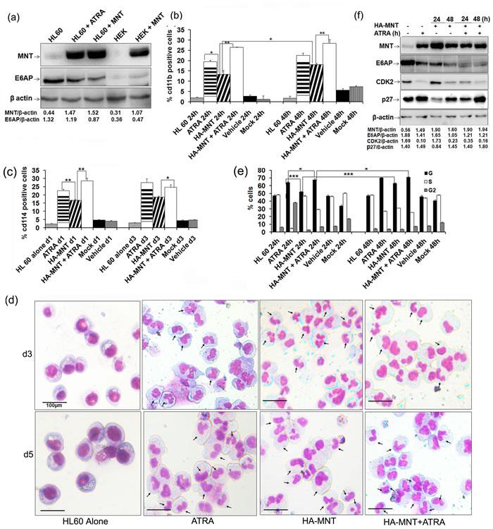 MNT overexpression promotes differentiation of HL60 cells:
