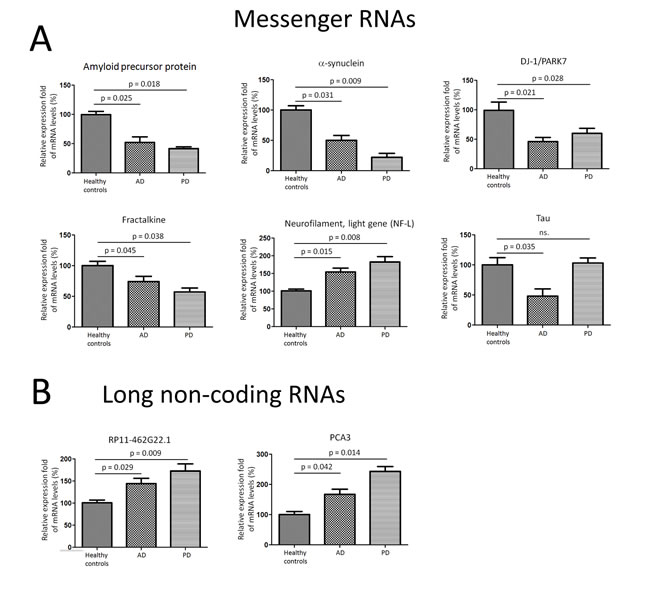 Messenger RNA transcripts and long non-coding RNAs were differentially expressed in CSF exosomes in PD and AD patients.