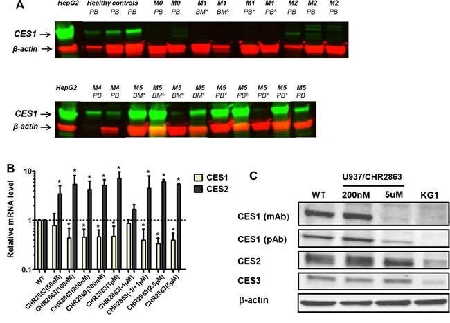 Carboxylesterase 1 and 2 expression in acute myeloid leukemia (AML) cells and CHR2863-resistant U937 cells.
