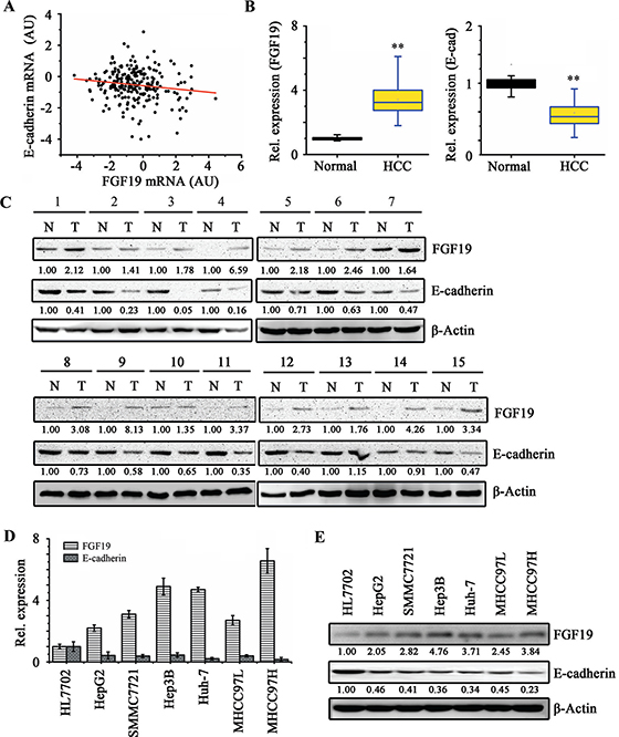 FGF19 and E-cadherin expressions are negatively correlated in HCC tissue samples and cell lines.