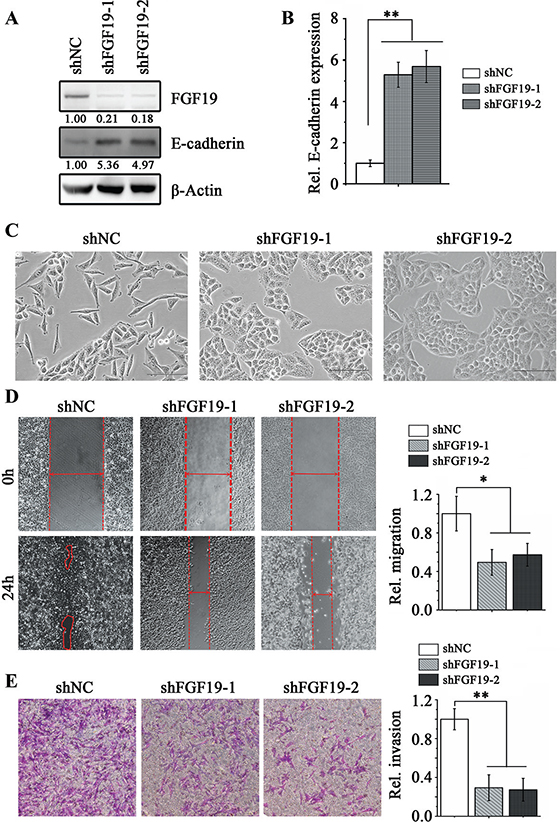 Knockdown of FGF19 in high invasive HCC cells suppresses EMT and migration/ invasion.