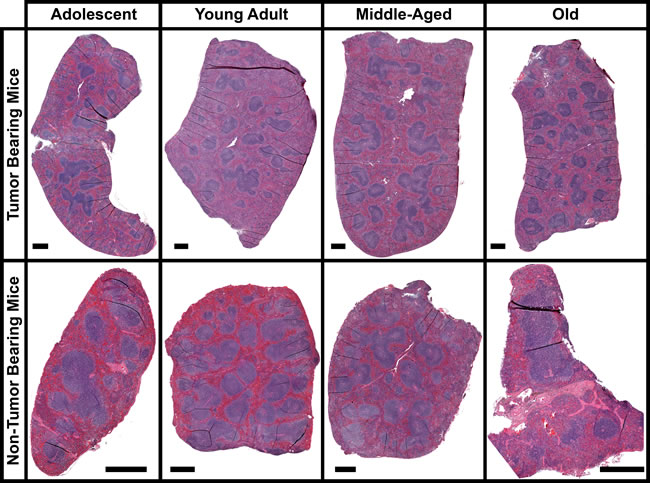 Morphology of the spleen for tumor and non-tumor bearing mice as a function of age.
