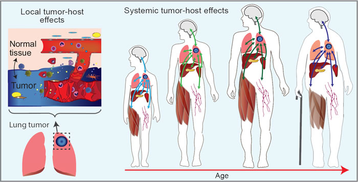 Schematic of systemic tumor-host effects as a function of age.