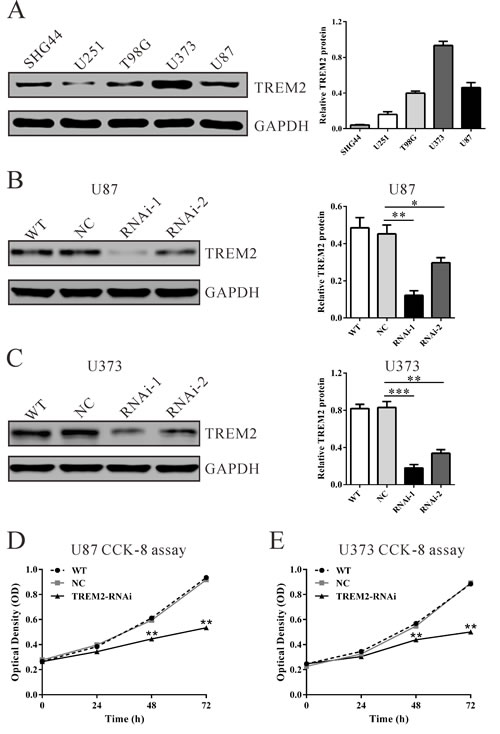 Suppressing TREM2 expression inhibited cell growth of glioma cells.