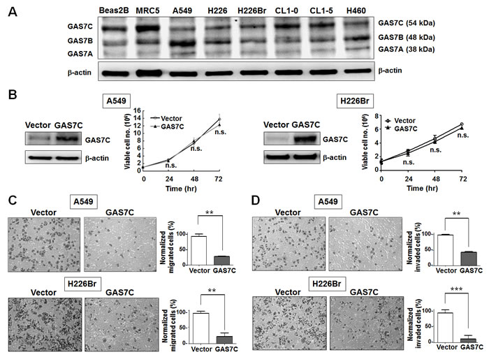 GAS7C overexpression inhibits cell migration ability in lung cancer cells.