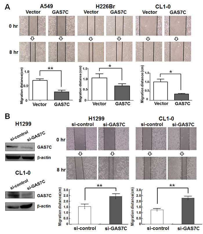 GAS7C overexpression decreases cell motility as assessed by wound healing assay.