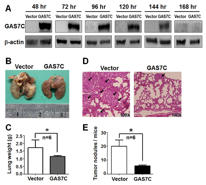 GAS7C overexpression reduces lung metastases of A549 cancer cells in animals.