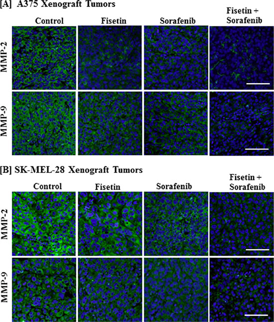 Effect of fisetin, sorafenib and their combination on MMP-2 and MMP-9 expression in BRAF-mutated melanoma xenograft tumors.