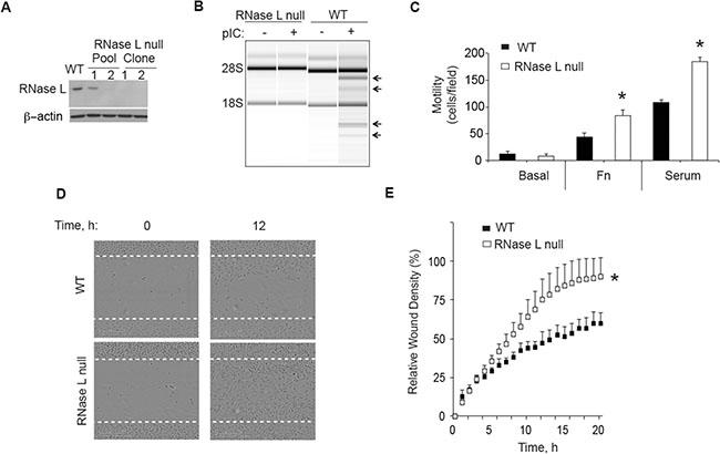 CRISP/Cas9 ablation of RNase L enhances PC3 cell migration.