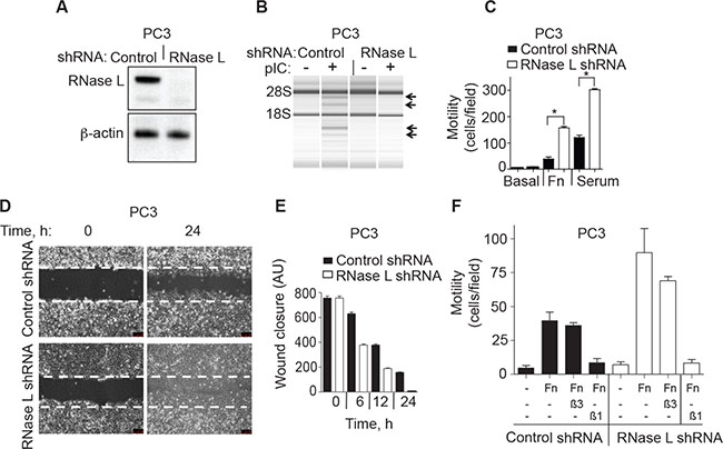 RNase L depletion by RNAi increases migration of PC3 cells.