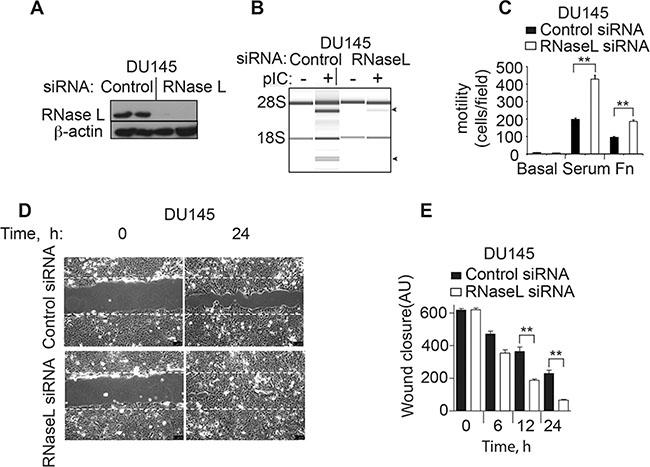 RNase L depletion by RNAi increases migration of DU145 cells.