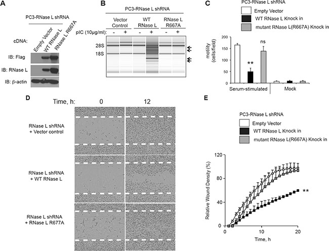 The catalytic domain of RNase L is required for inhibition of PC3 cell migration.
