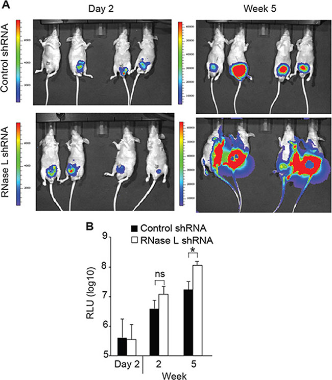 RNase L suppresses tumor growth and metastasis of orthotopically implanted PC3 cells.