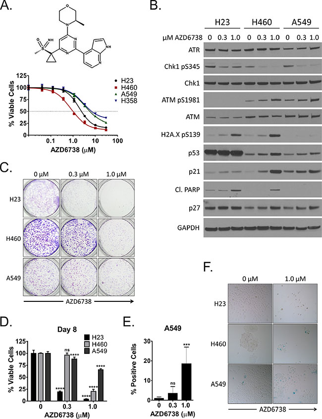 Inhibition of ATR by AZD6738 inhibits growth of NSCLC cells and induces a DNA damage response.