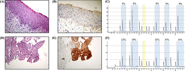 Immunohistochemical staining of P16 in samples from patients with histological diagnosis of CIN2.