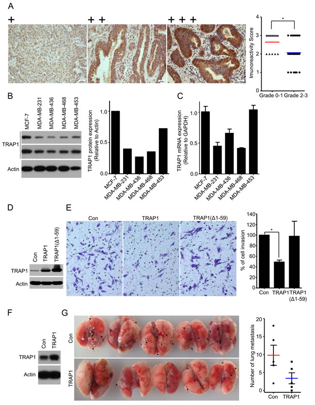 TRAP1 inversely correlates with tumor grade and overexpression inhibits breast cancer metastasis.