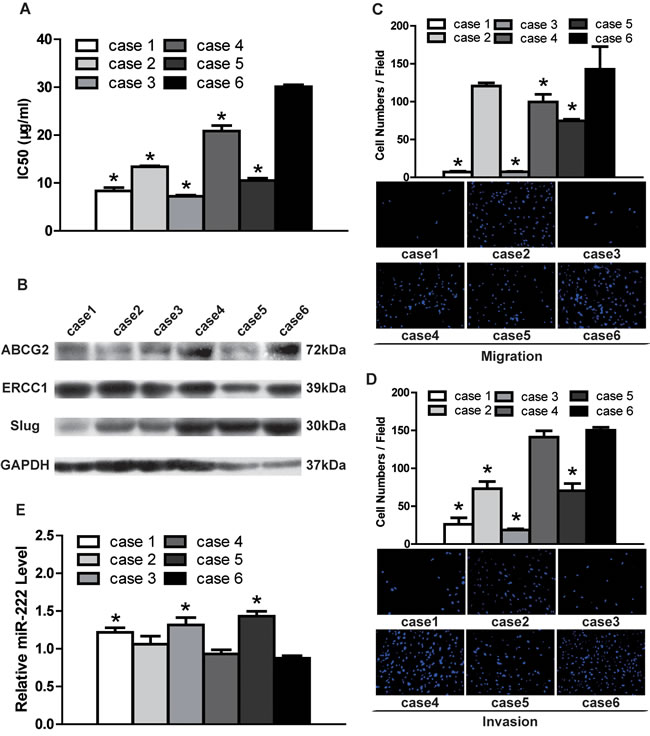 DDP resistance, migratory/invasive potential and miR-222 expression in TSCC primary cultural cells.