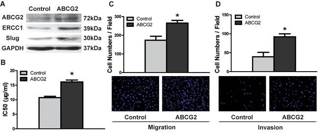 ABCG2 overexpression enhances DDP resistance and migratory/invasive potential in TSCC.