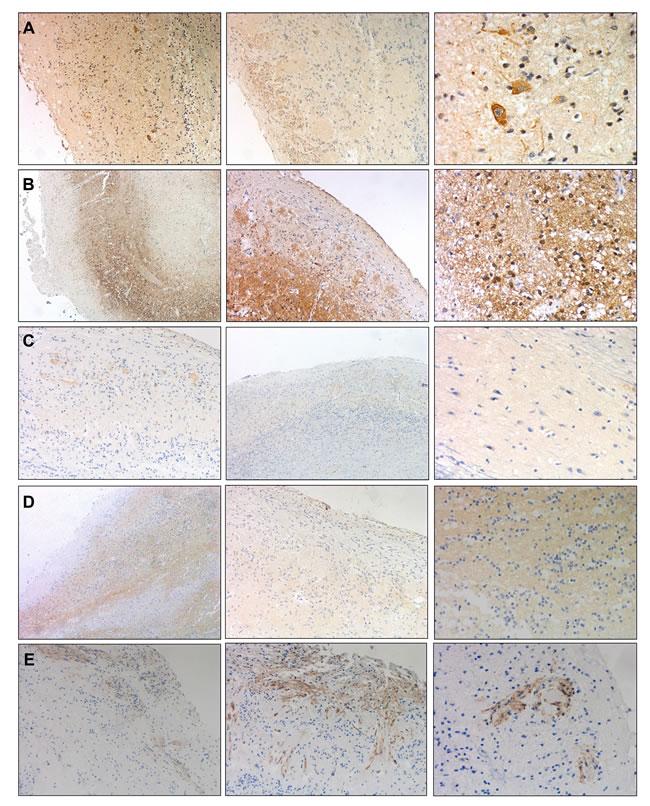 Immunohistochemical localization of AKAP12, RIPX, CPNE6, VILIP1, and DPP6 in human OB.