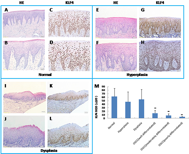 Expression of KLF4 by immunohistochemistry (IHC) in human oral mucosa and its precancerous lesions and oral squamous cell carcinomas. As well as H&E pictures of equivalent or serial sections from KLF4 pictures with low magnification and high magnification of the sample.