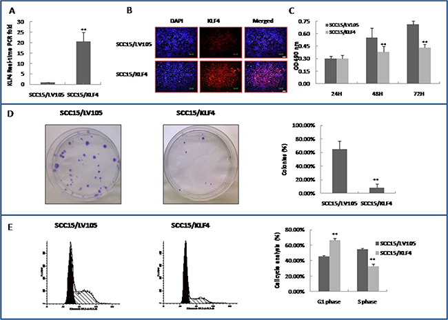 Stable transduction of KLF4 into SCC15 cells could slow down cell growth, inhibit colony formation, and cell cycle G1/S transition.