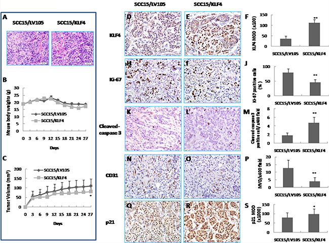 Inhibition of tumor growth in vivo by KLF4 transduction in a xenograft mouse model.