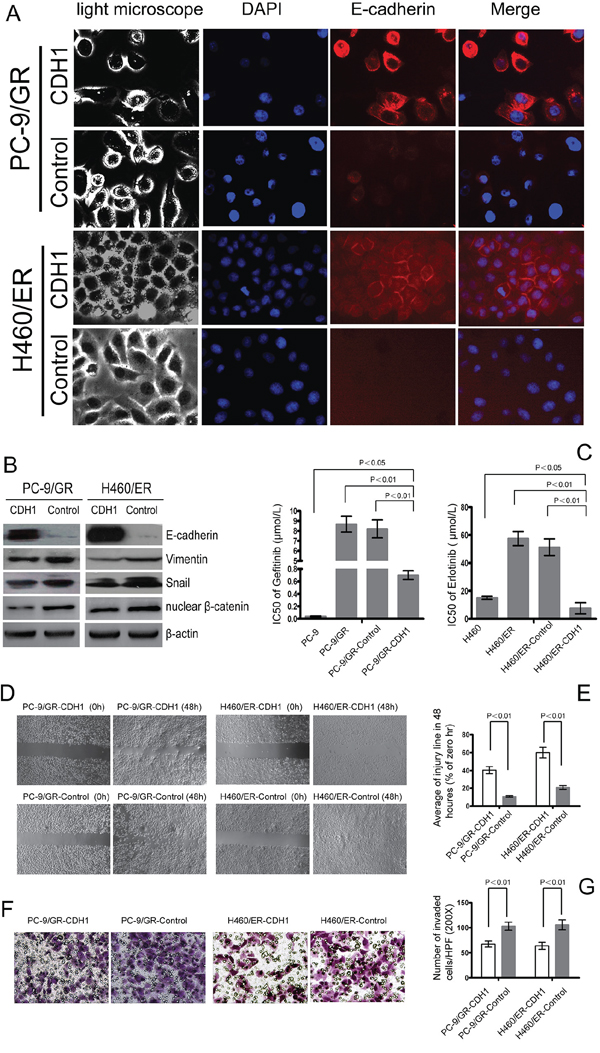 Effect of E-cadherin (CDH1) overexpression on EMT and the sensitivity to gefitinib and erlotinib in EGFR-TKIs-resistant cells.