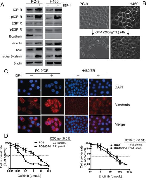IGF1R activation led to EMT and decreased sensitivity against EGFR-TKIs in PC-9 and H460 cells upon IGF-1 induction.