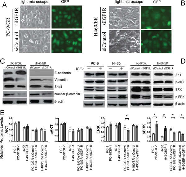 Effects of IGF1R on EMT and ERK/MAPK signaling of EGFR-TKIs-resistant cells.