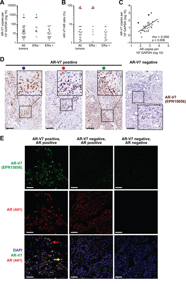 The AR variant AR-V7 is expressed in clinical breast cancer samples.