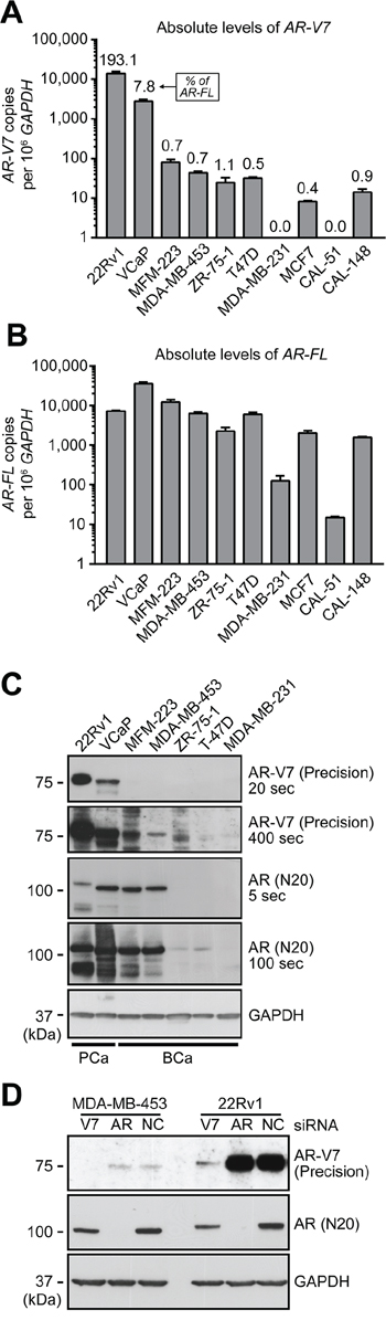 Expression of AR-V7 in breast cancer cell line models.
