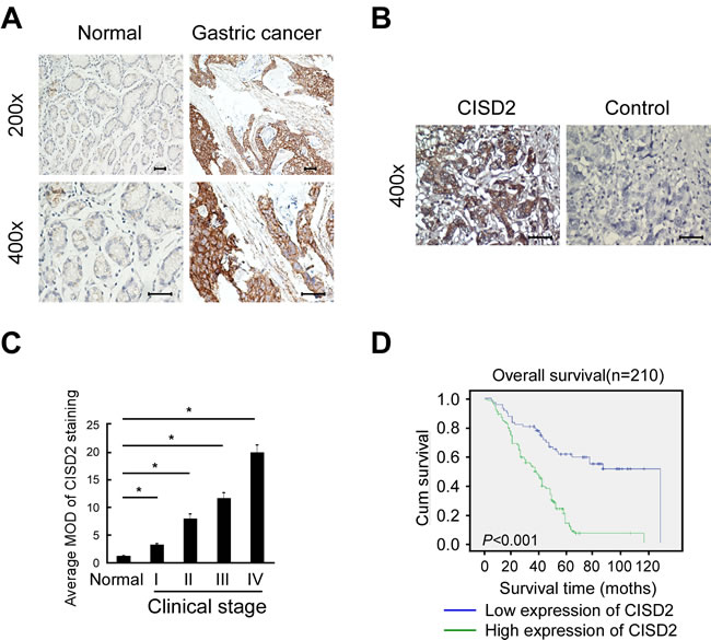 High CISD2 expression in gastric cancer tissues correlates with poor patient survival.