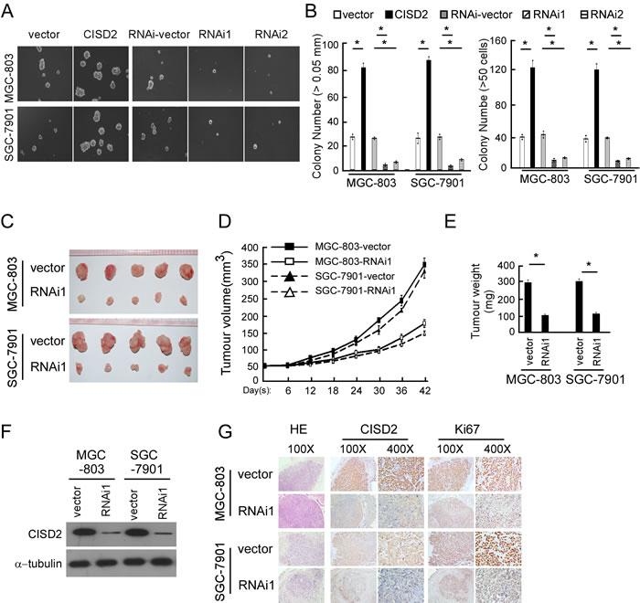 CISD2 regulates the tumorigenesis of gastric cancer.