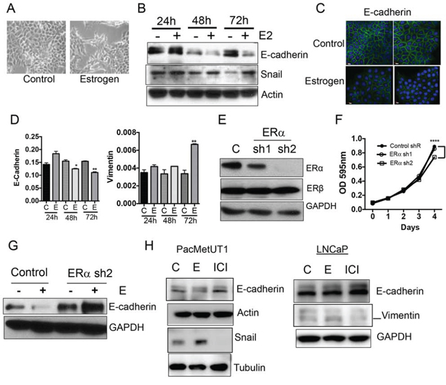 Estrogen/ERα induces epithelial-to-mesenchymal (EMT) transition.