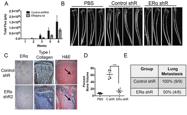 ERα knockdown in PacMetUT1 cells reduces osteoblastic lesion formation and lung metastasis.