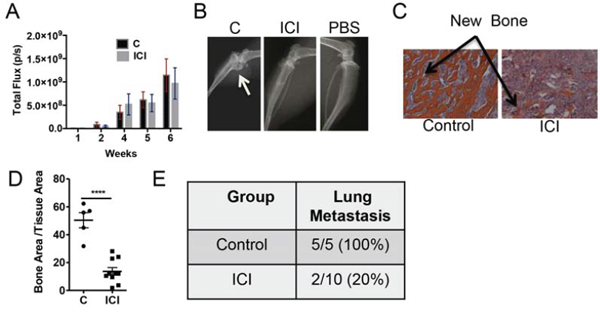 Treatment with pharmacological inhibitor ICI reduces osteoblastic lesion development and lung metastasis.