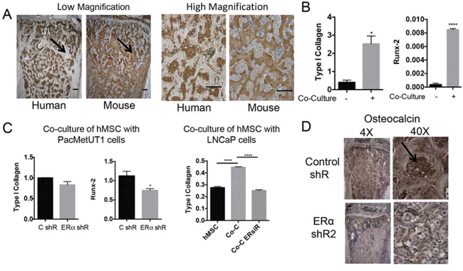 ERα knockdown in prostate cancer cells attenuates their ability to induce osteoblastic marker expression in pre-osteoblasts.