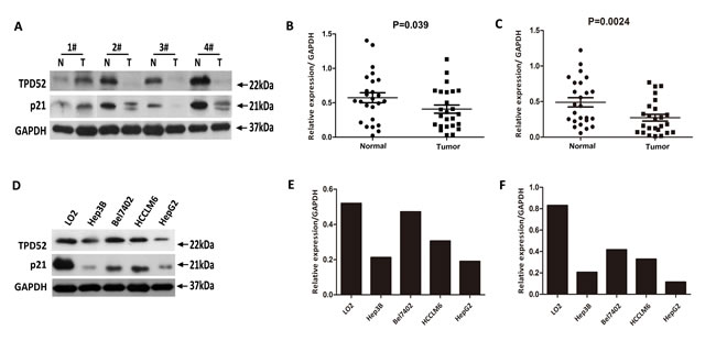 Western blotting evaluation of TPD52 and p21 protein expression in primary HCC surgical specimens and HCC cell lines.