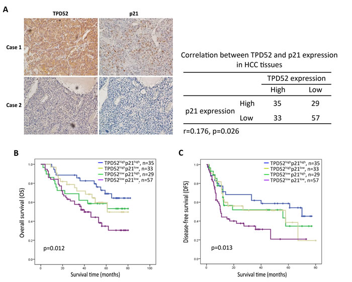 Immunohistochemical analysis for the correlation between TPD52 and p21 protein expression.