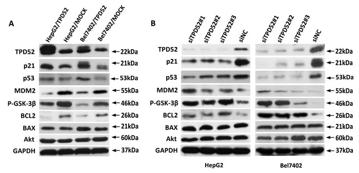 Western blotting detection of apoptosis-related protein.