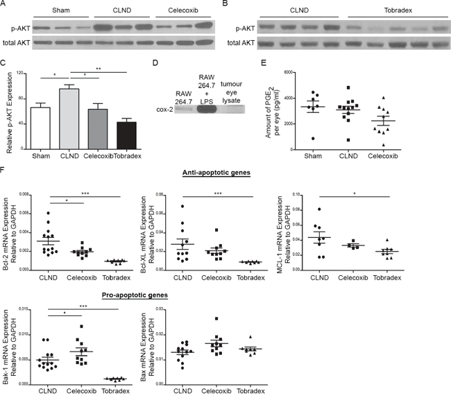 Celecoxib and Tobradex reduce CLND-induced upregulation of activated AKT proteins in uveal tumor.