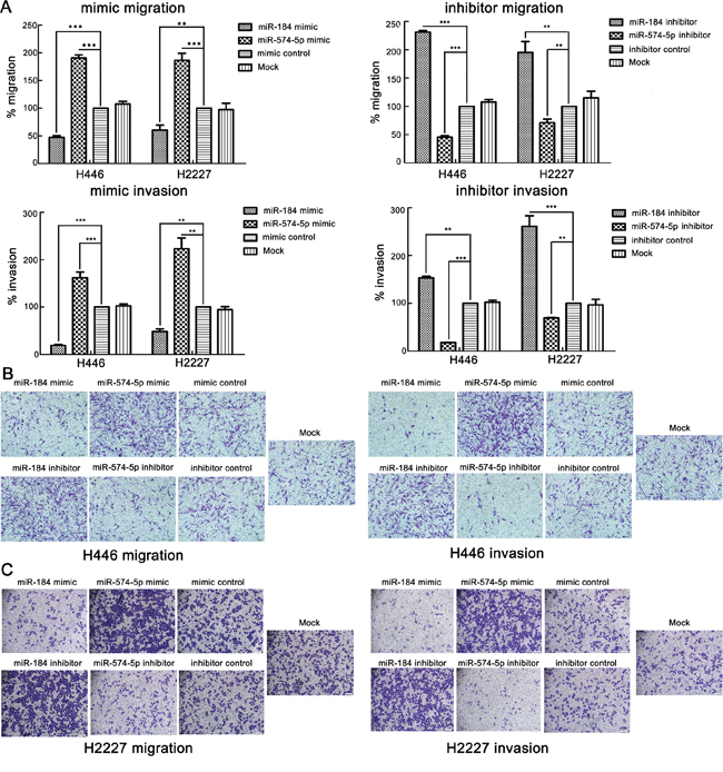 miR-574-5p promotes the metastasis and invasion of SCLC cell lines, whereas miR-184 suppresses it.