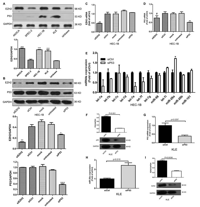Mutp53 induces EZH2 expression and inhibits miR-26a expression.