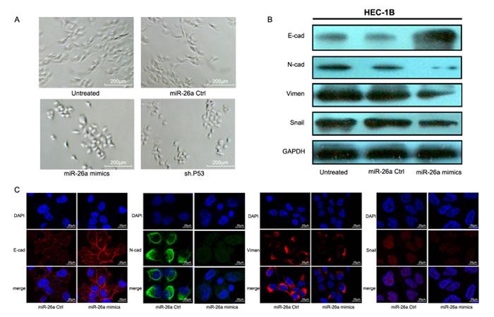 miR-26a promotes MET in HEC-1B cells.