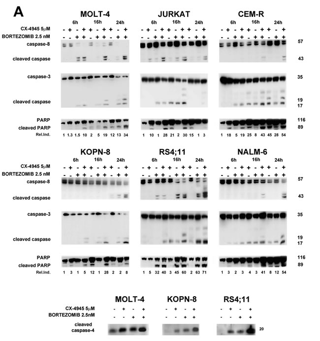 Apoptosis induced by the bortezomib/CX-4945 combination involves both mitochondrial and ER-stress